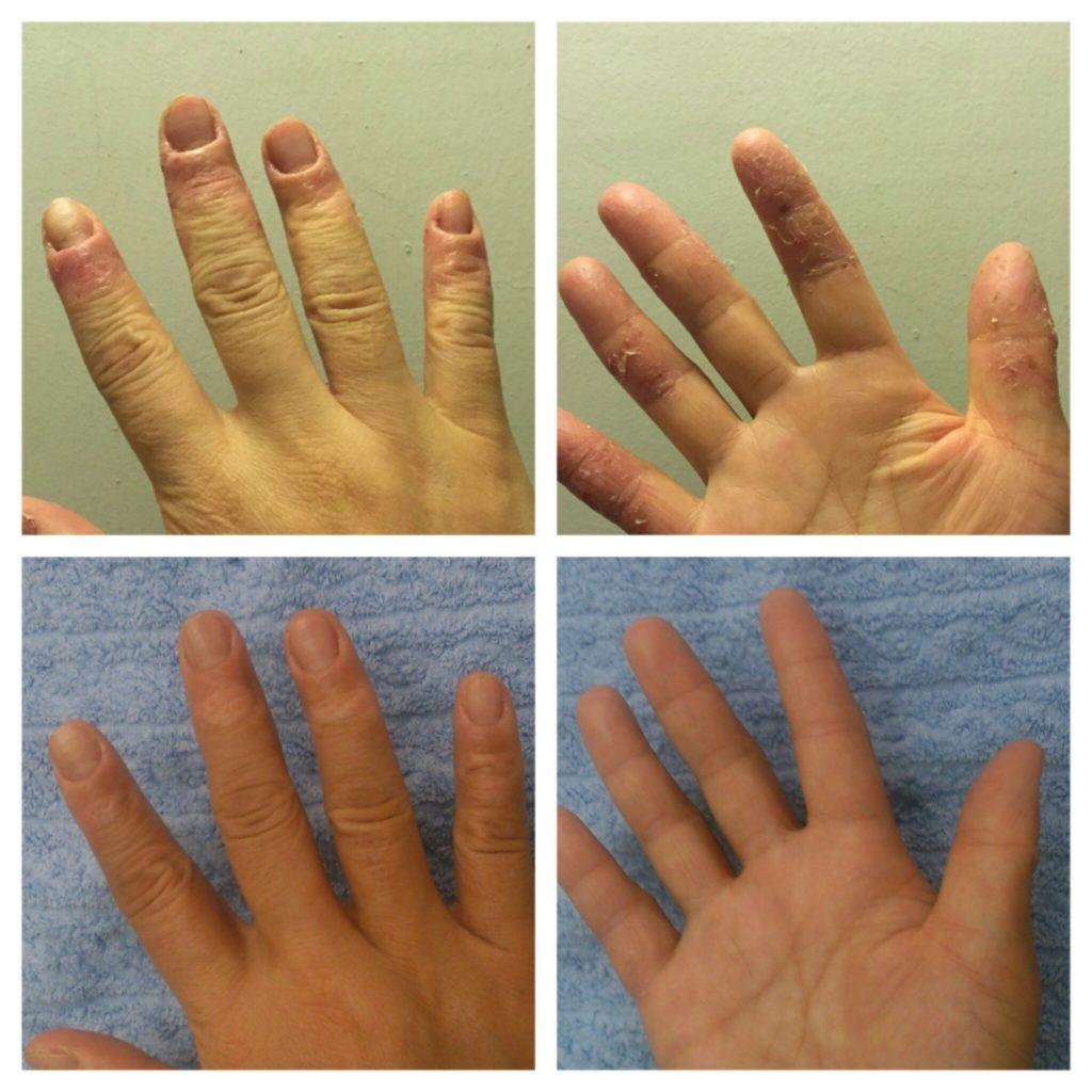 漢方薬服用前後のアトピーの方の両手